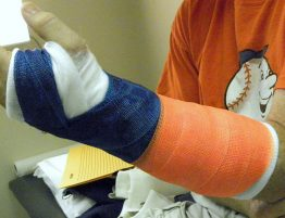 broken arm injury